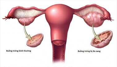 Review cho người mới mắc hội chứng buồng trứng đa nang PCOS